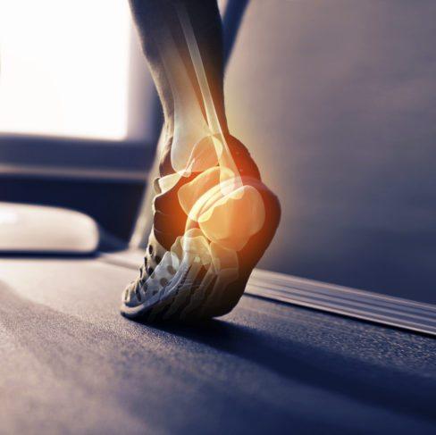 Saites un ortozes – kam tās nepieciešamas un ko tās spēj uzlabot?